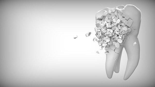 歯科矯正中の虫歯治療